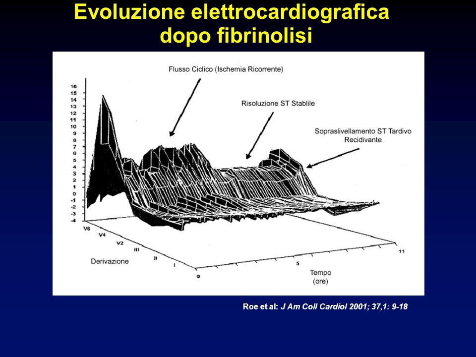 Evoluzione elettrocardiografica dopo fibrinolisi