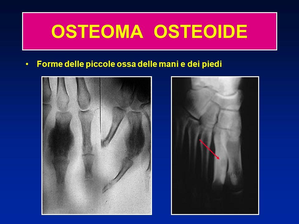 OSTEOMA OSTEOIDE Forme delle piccole ossa delle mani e dei piedi