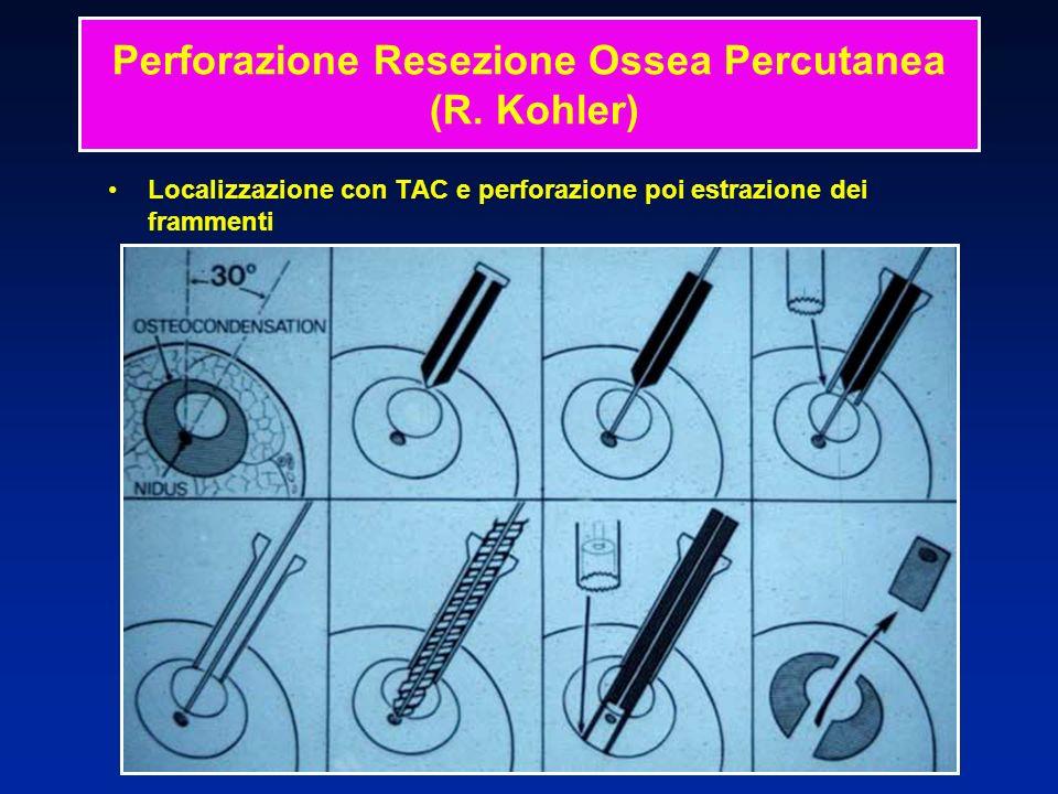 Perforazione Resezione Ossea Percutanea