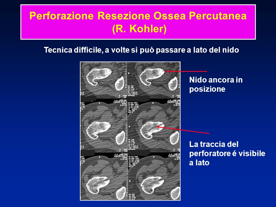 Perforazione Resezione Ossea Percutanea (R. Kohler)