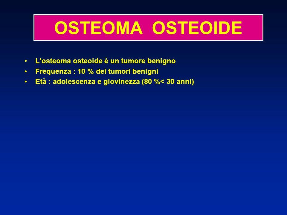 OSTEOMA OSTEOIDE L osteoma osteoide è un tumore benigno