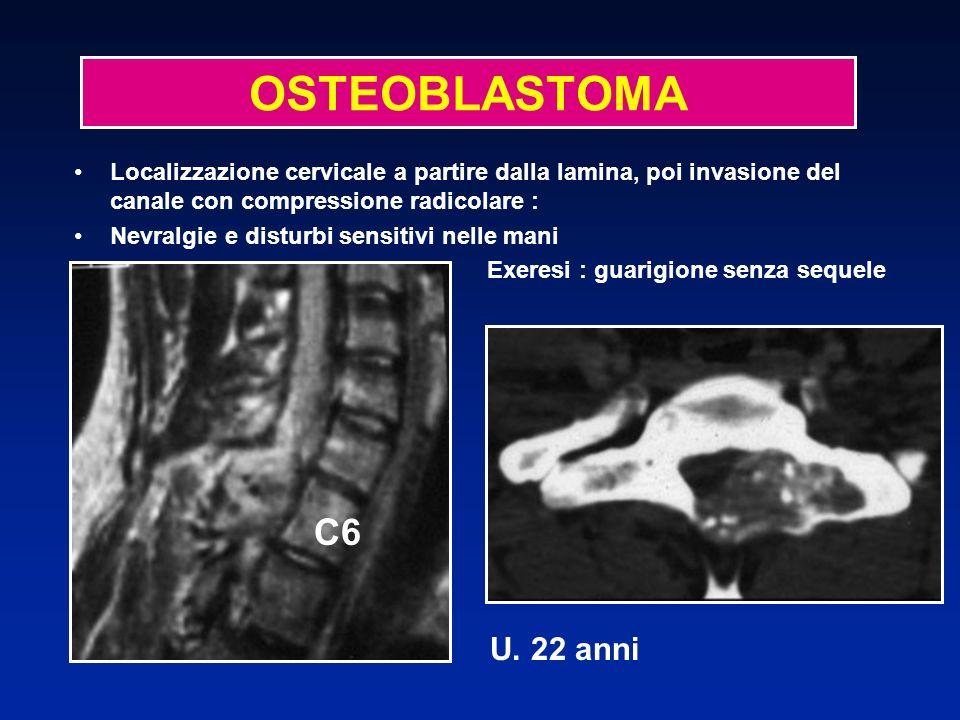 OSTEOBLASTOMA Localizzazione cervicale a partire dalla lamina, poi invasione del canale con compressione radicolare :