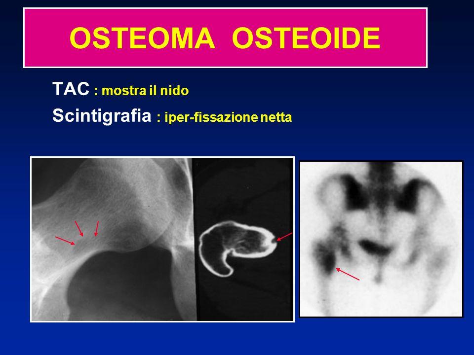 OSTEOMA OSTEOIDE TAC : mostra il nido