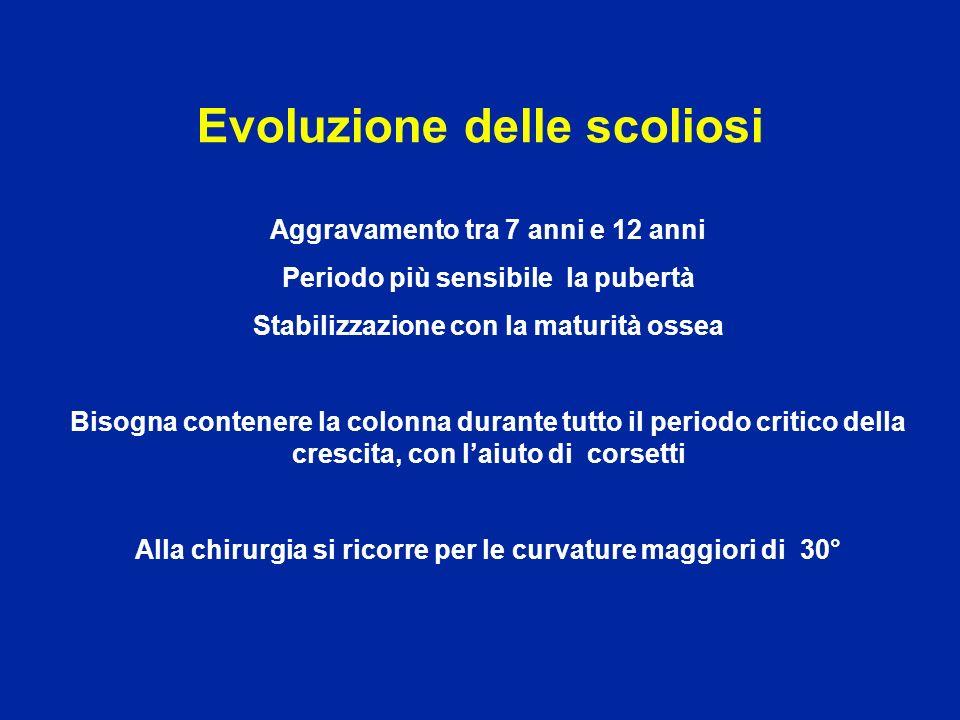 Evoluzione delle scoliosi