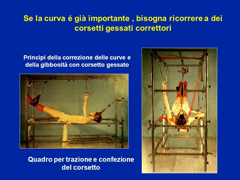 Quadro per trazione e confezione del corsetto