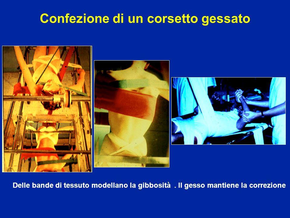 Confezione di un corsetto gessato