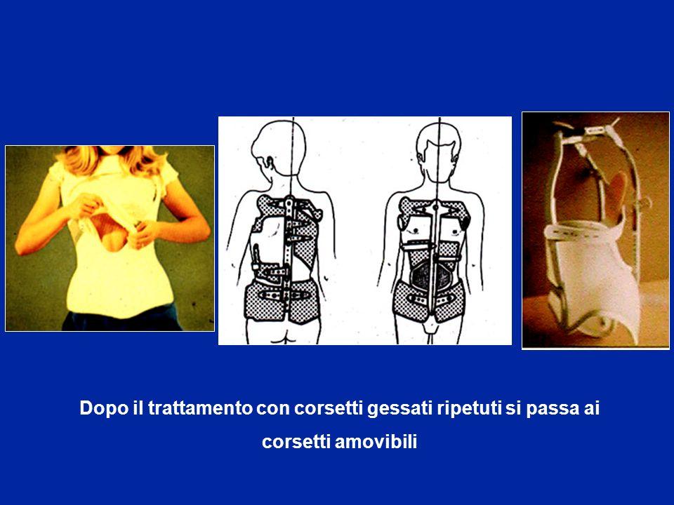 Dopo il trattamento con corsetti gessati ripetuti si passa ai