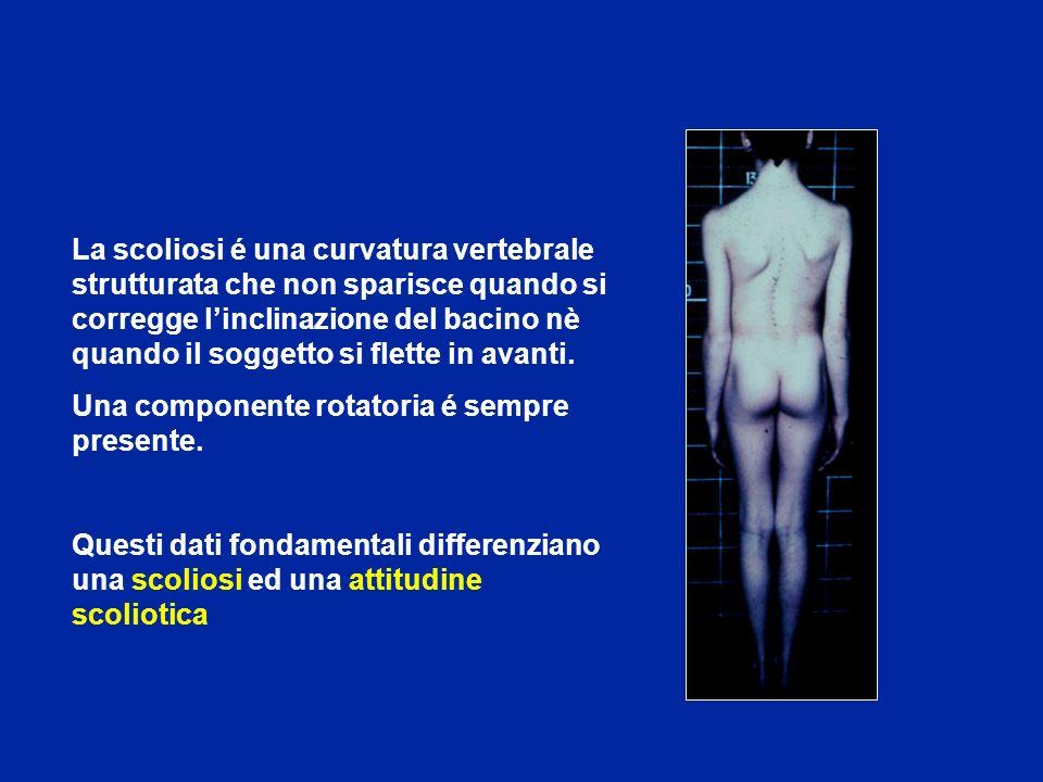 La scoliosi é una curvatura vertebrale strutturata che non sparisce quando si corregge l'inclinazione del bacino nè quando il soggetto si flette in avanti.