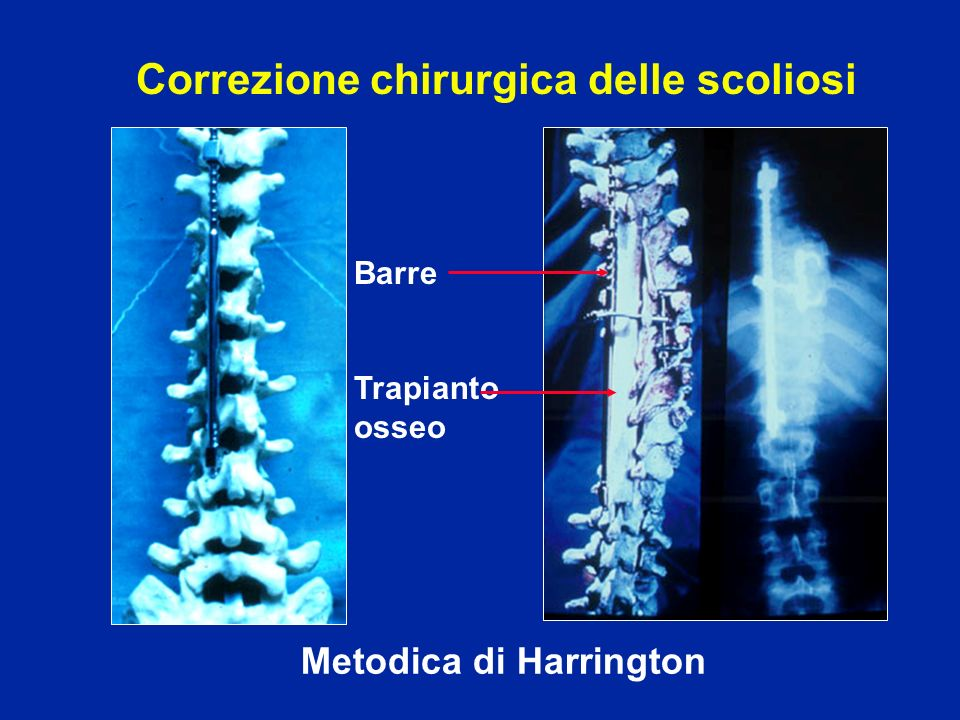 Metodica di Harrington