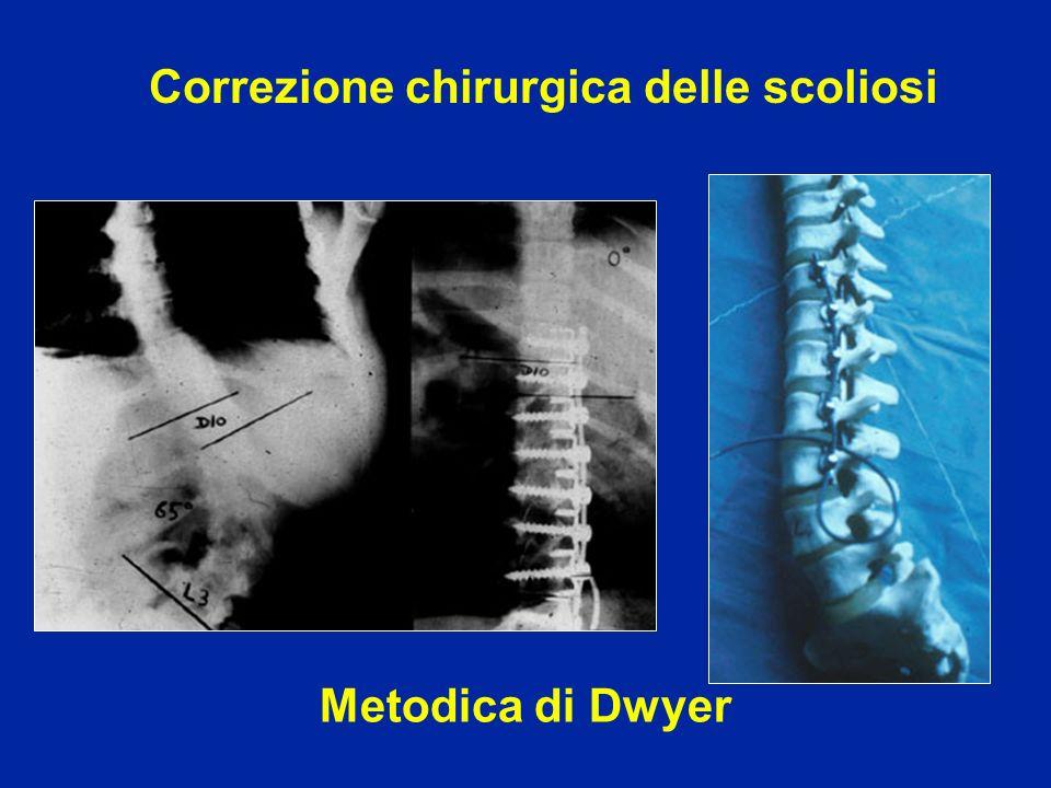 Correzione chirurgica delle scoliosi