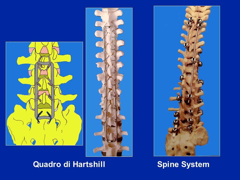 Quadro di Hartshill Spine System