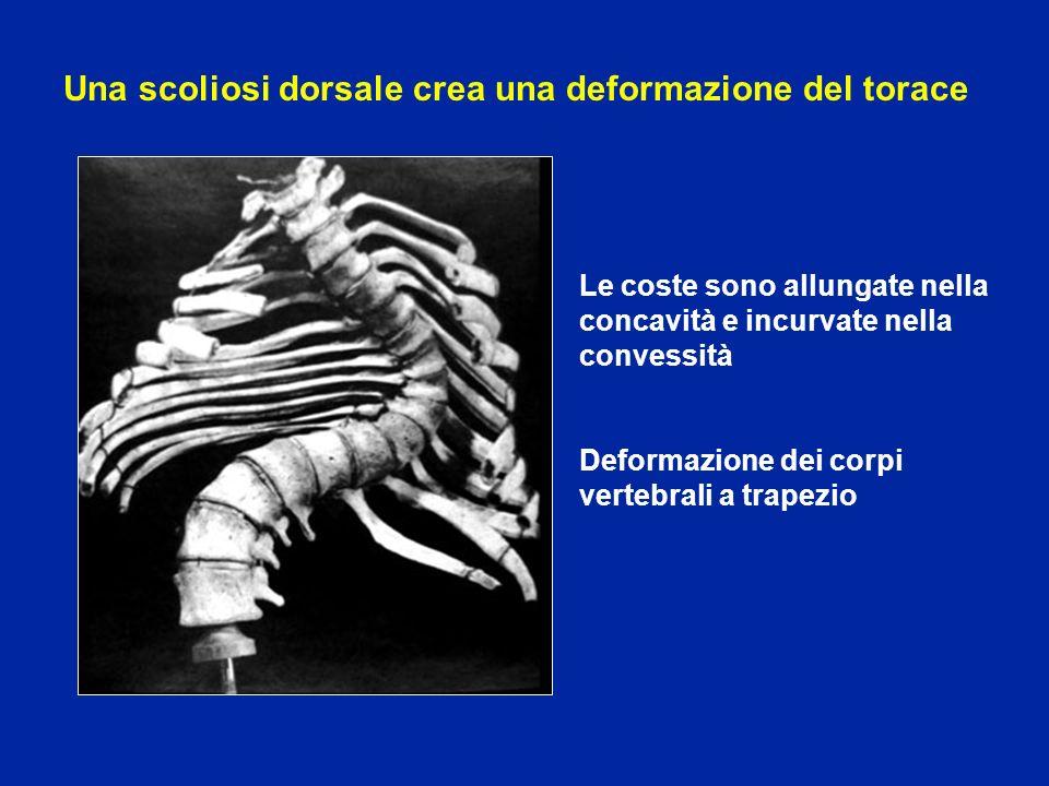Una scoliosi dorsale crea una deformazione del torace
