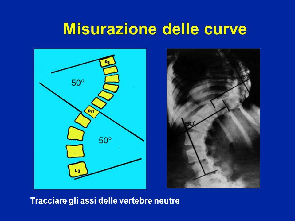 Misurazione delle curve