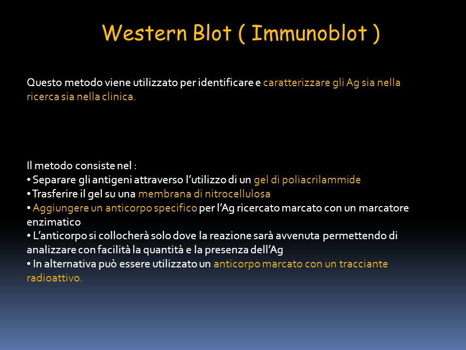 Western Blot ( Immunoblot )