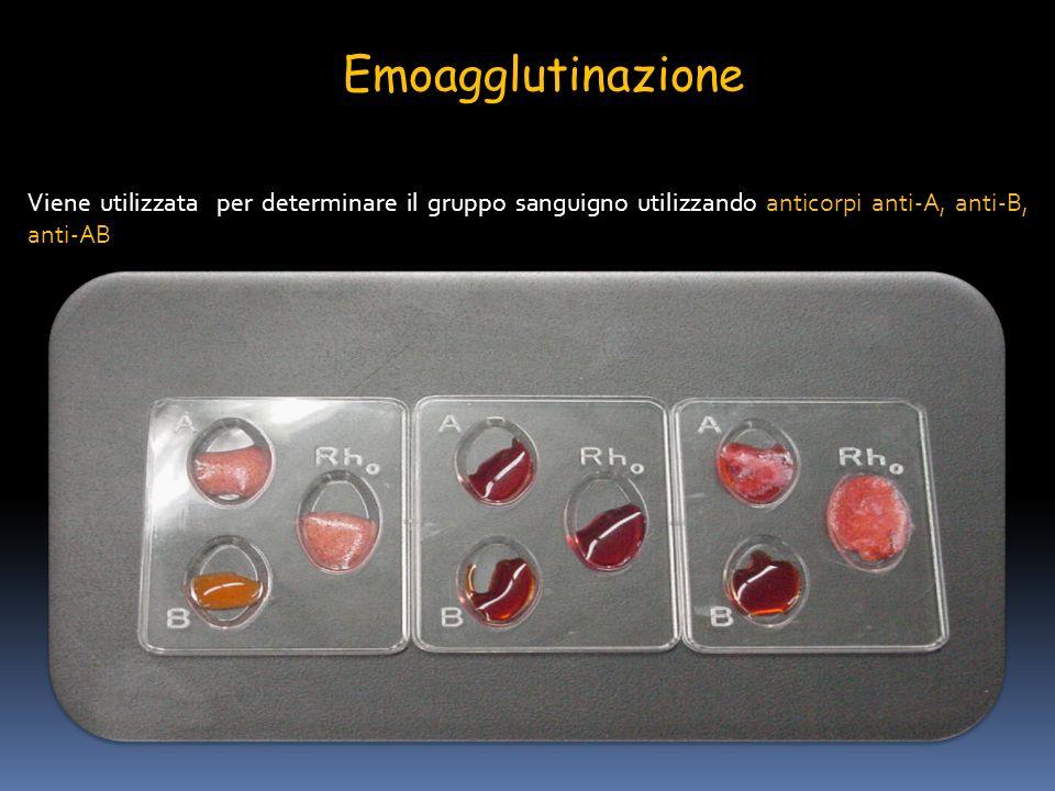 Emoagglutinazione Viene utilizzata per determinare il gruppo sanguigno utilizzando anticorpi anti-A, anti-B, anti-AB.