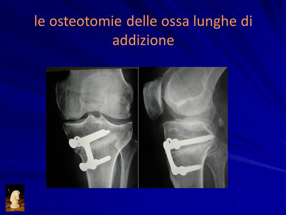 le osteotomie delle ossa lunghe di addizione