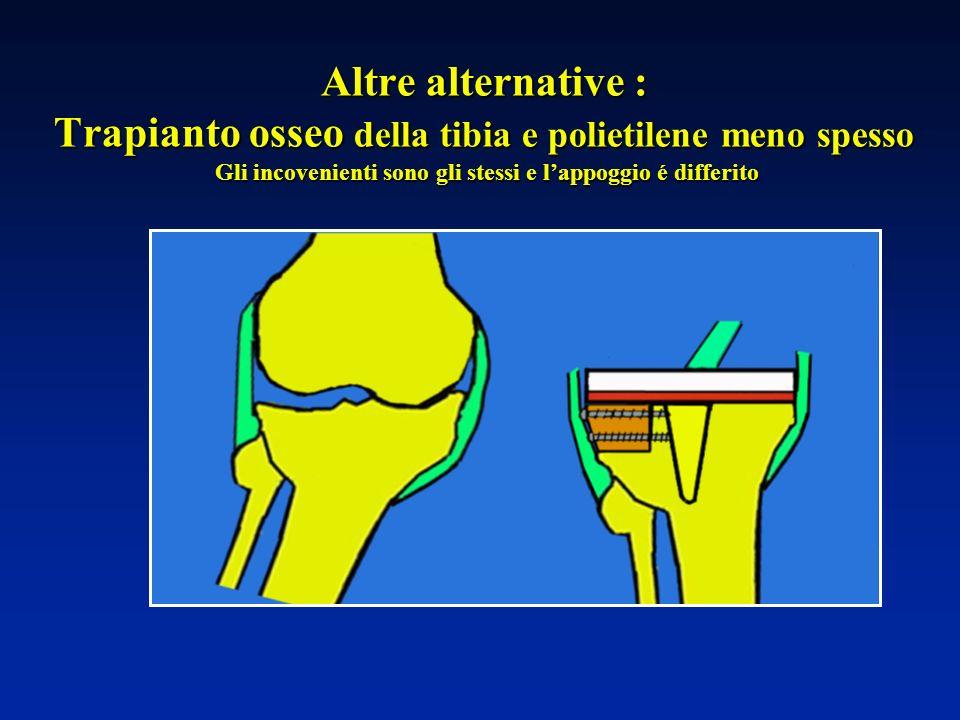 Altre alternative : Trapianto osseo della tibia e polietilene meno spesso Gli incovenienti sono gli stessi e l'appoggio é differito