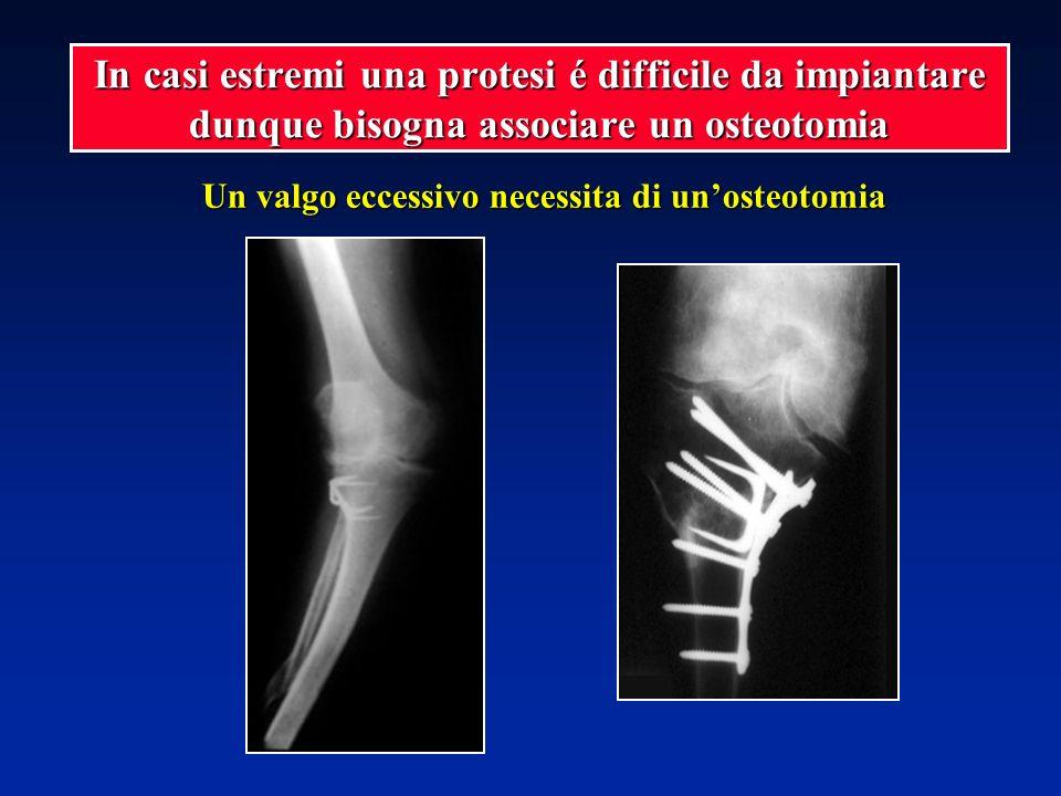 Un valgo eccessivo necessita di un'osteotomia