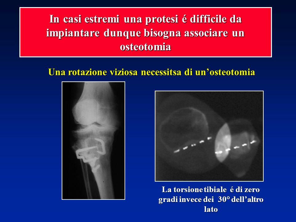 In casi estremi una protesi é difficile da impiantare dunque bisogna associare un osteotomia