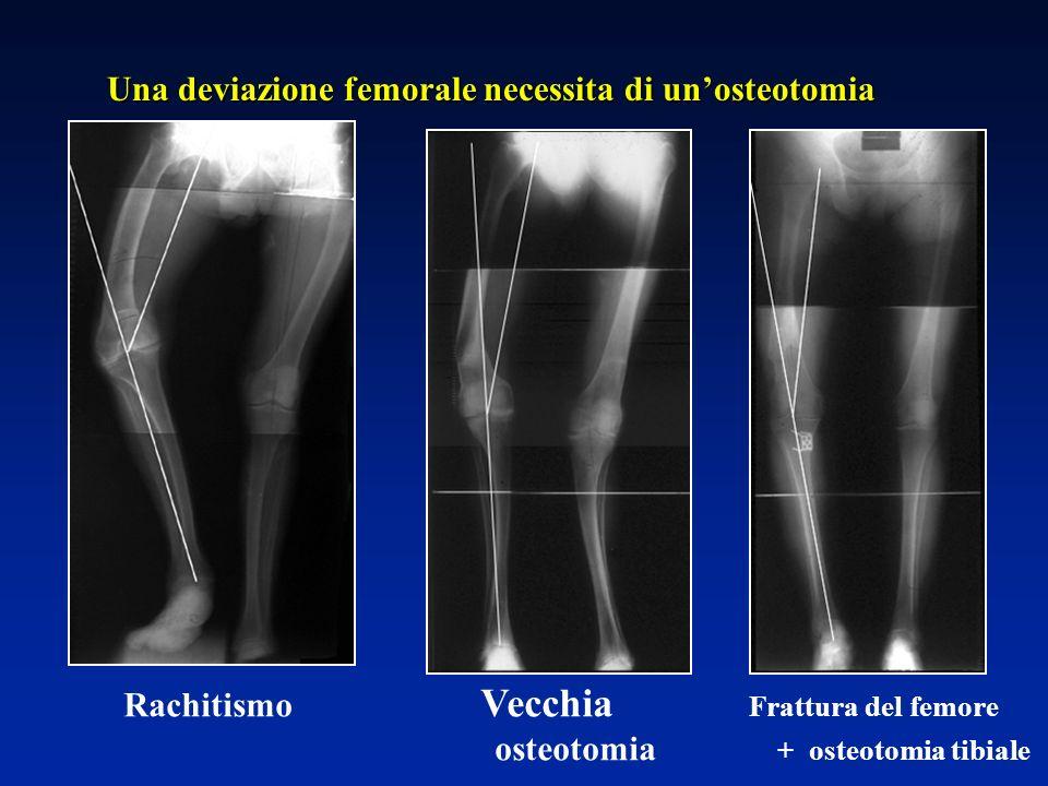 Una deviazione femorale necessita di un'osteotomia