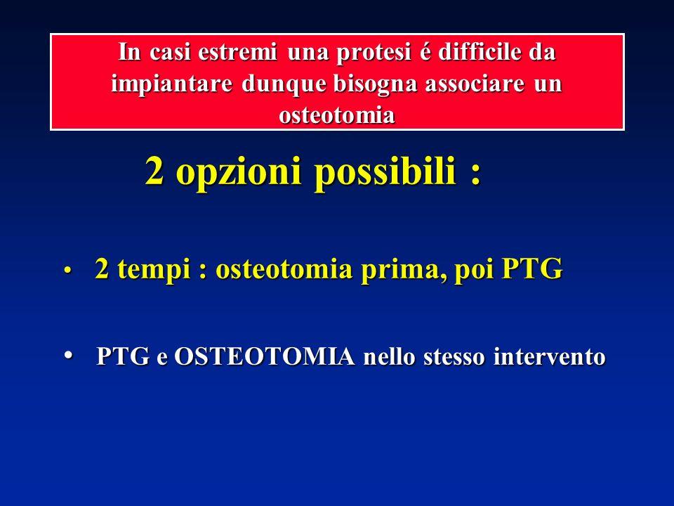 2 opzioni possibili : PTG e OSTEOTOMIA nello stesso intervento
