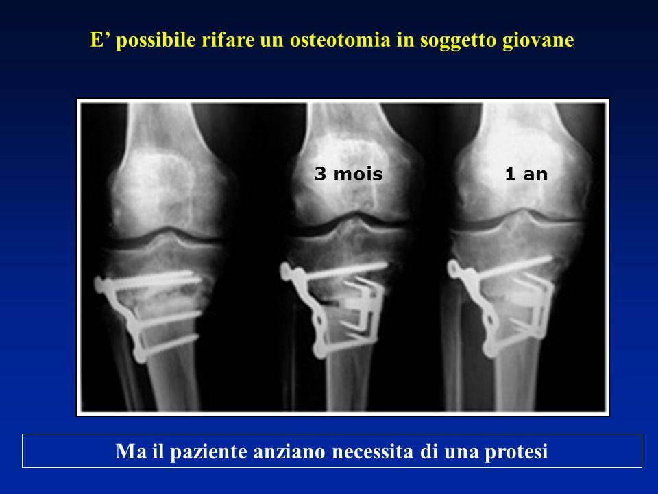 E' possibile rifare un osteotomia in soggetto giovane