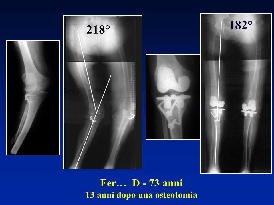 Fer… D - 73 anni 13 anni dopo una osteotomia