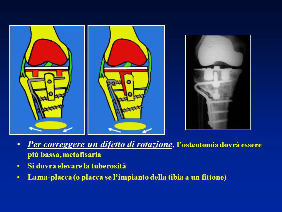 Per correggere un difetto di rotazione, l'osteotomia dovrà essere più bassa, metafisaria