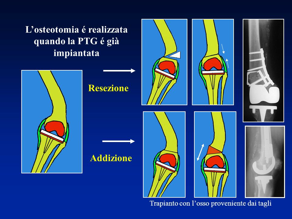 L'osteotomia é realizzata quando la PTG é già impiantata