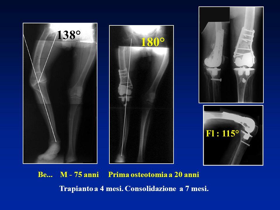 138° 180° Fl : 115° Be... M - 75 anni Prima osteotomia a 20 anni