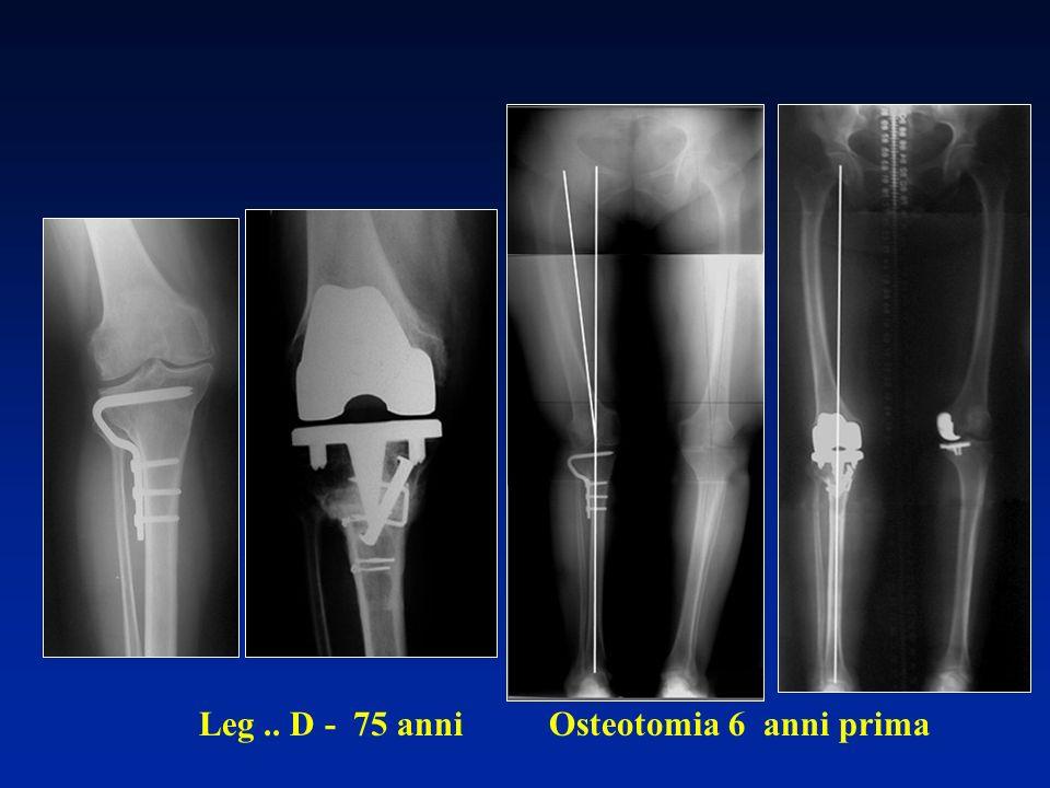 Leg .. D - 75 anni Osteotomia 6 anni prima