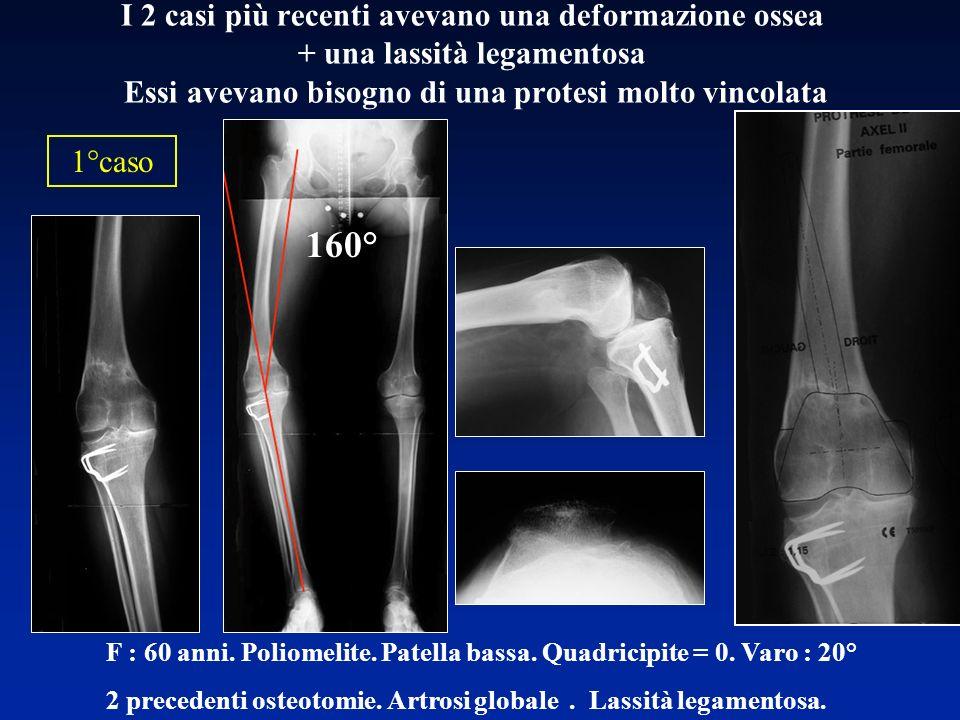 I 2 casi più recenti avevano una deformazione ossea + una lassità legamentosa Essi avevano bisogno di una protesi molto vincolata