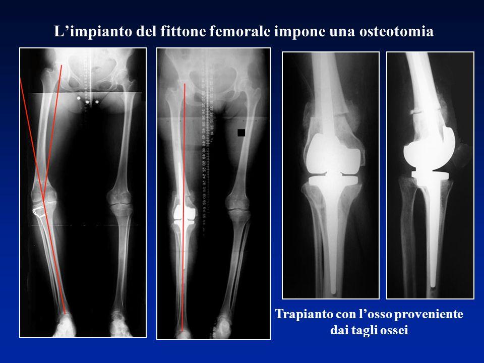 L'impianto del fittone femorale impone una osteotomia