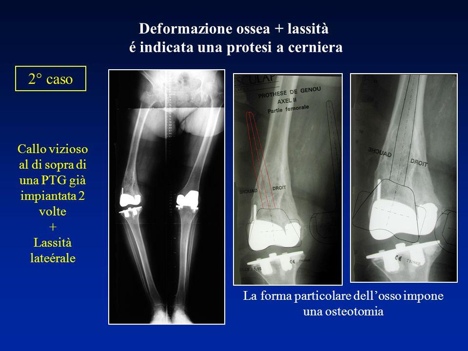 Deformazione ossea + lassità é indicata una protesi a cerniera