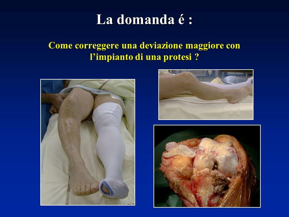 La domanda é : Come correggere una deviazione maggiore con l'impianto di una protesi