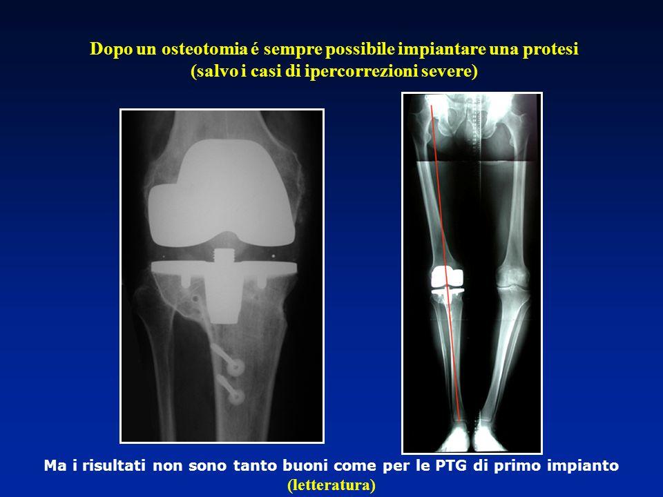 Dopo un osteotomia é sempre possibile impiantare una protesi (salvo i casi di ipercorrezioni severe)