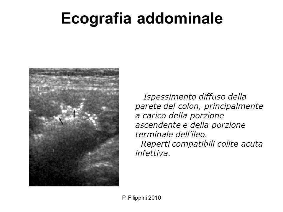 Ecografia addominale