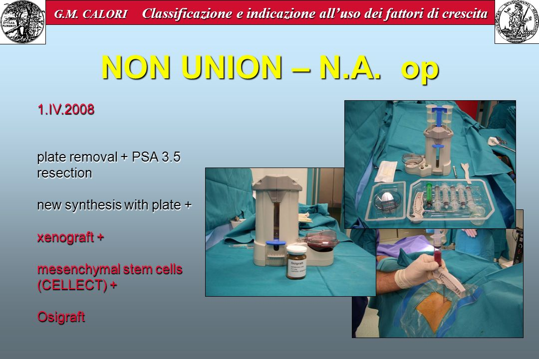 NON UNION – N.A. op 1.IV.2008 plate removal + PSA 3.5 resection