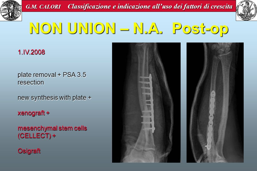 NON UNION – N.A. Post-op 1.IV.2008 plate removal + PSA 3.5 resection