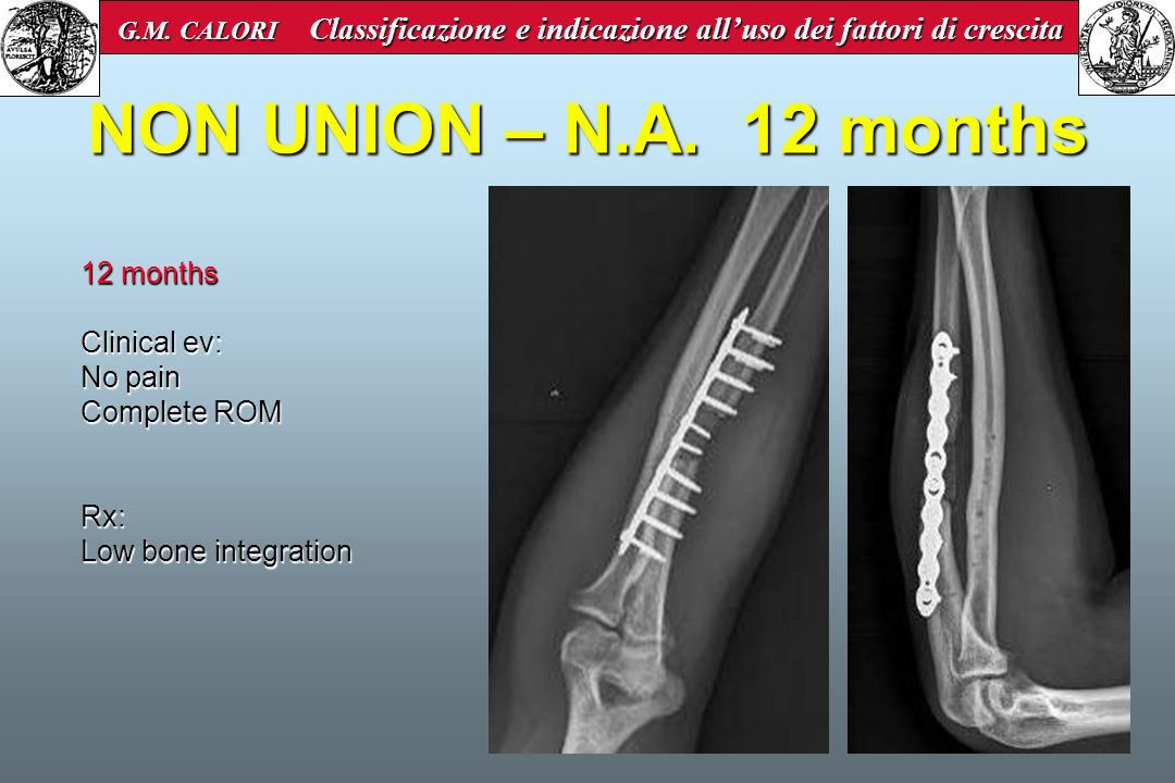 NON UNION – N.A. 12 months 12 months Clinical ev: No pain Complete ROM