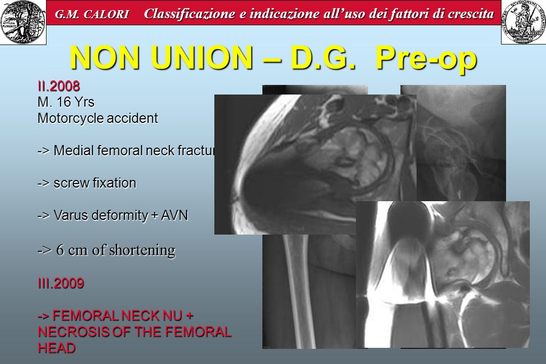NON UNION – D.G. Pre-op -> 6 cm of shortening II.2008 M. 16 Yrs