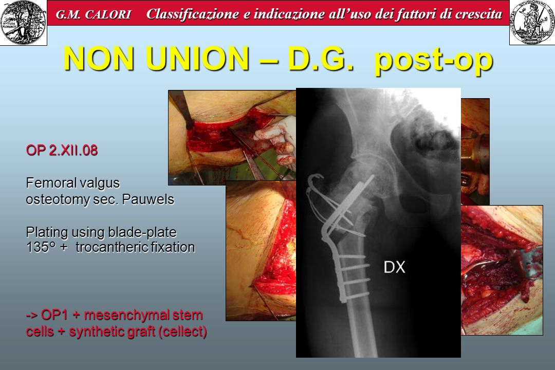 NON UNION – D.G. post-op OP 2.XII.08 Femoral valgus
