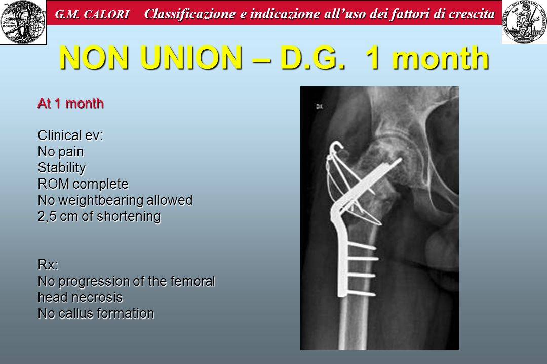 NON UNION – D.G. 1 month At 1 month Clinical ev: No pain Stability
