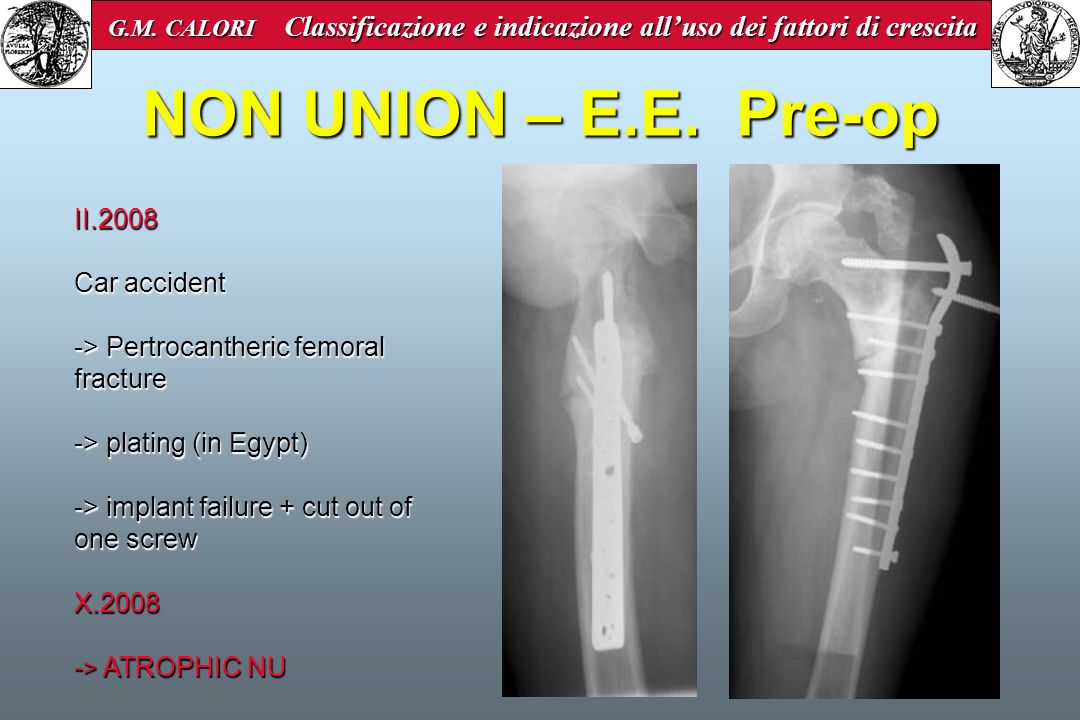 NON UNION – E.E. Pre-op II.2008 Car accident