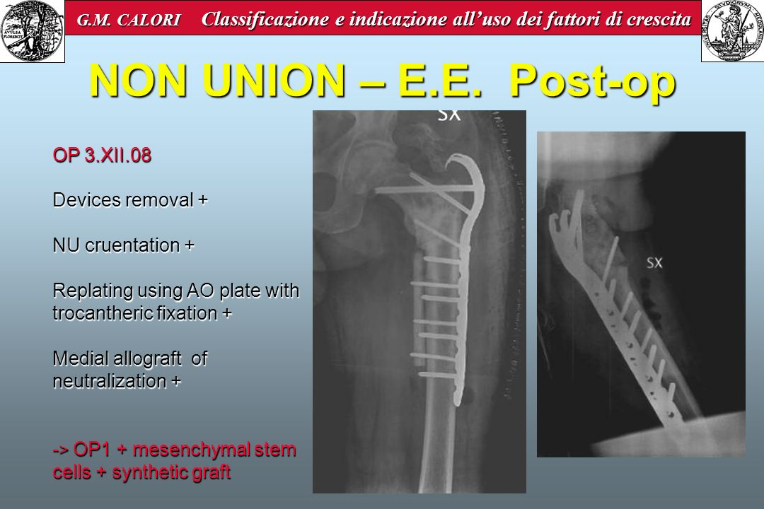 NON UNION – E.E. Post-op OP 3.XII.08 Devices removal +