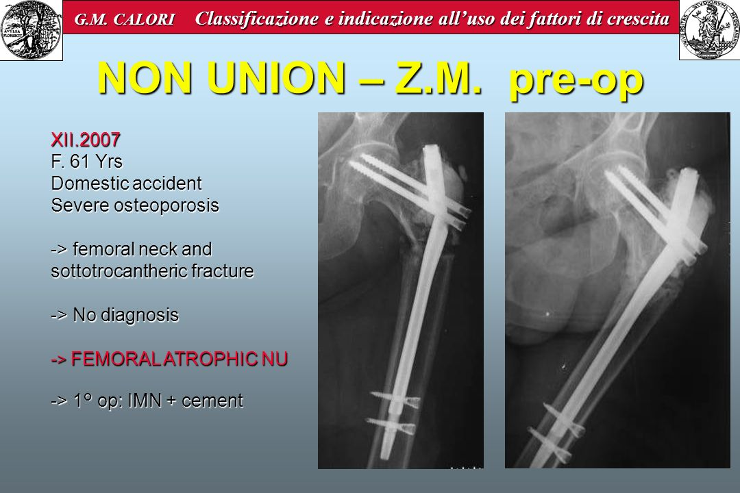 NON UNION – Z.M. pre-op XII.2007 F. 61 Yrs Domestic accident