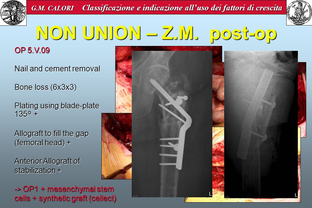 NON UNION – Z.M. post-op OP 5.V.09 Nail and cement removal