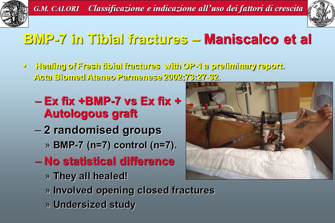 BMP-7 in Tibial fractures – Maniscalco et al