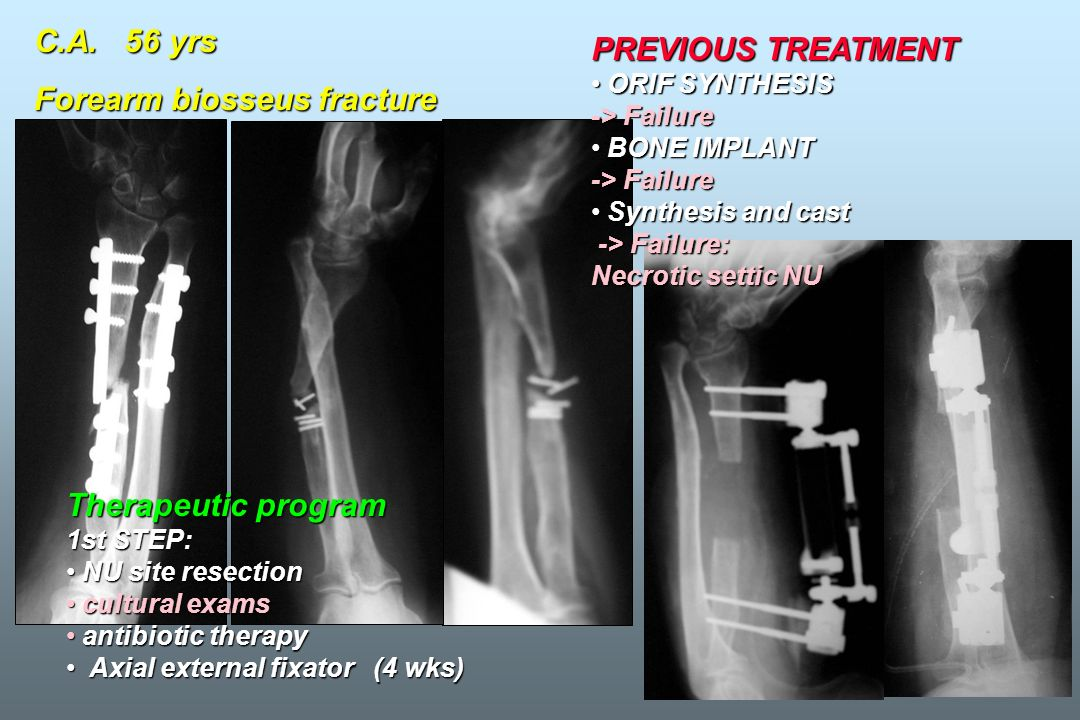 Forearm biosseus fracture PREVIOUS TREATMENT