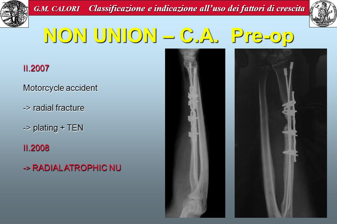 NON UNION – C.A. Pre-op II.2007 Motorcycle accident